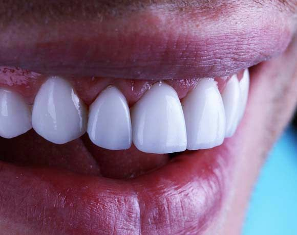Close-up of a patient's teeth and gums